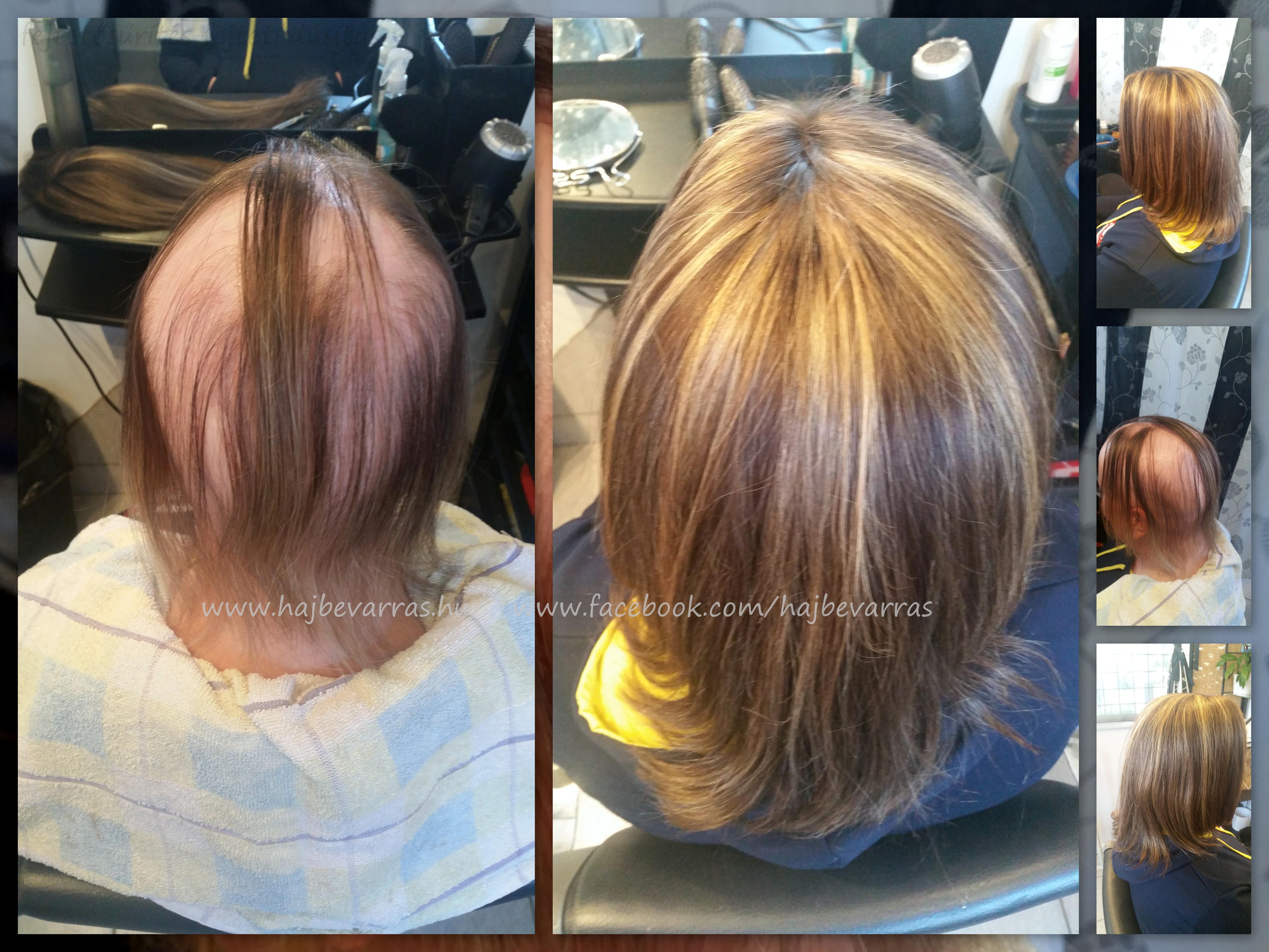 www.hajbevarras.hu   fejtetősűrítés fejtetődúsítás hajhosszabbítás